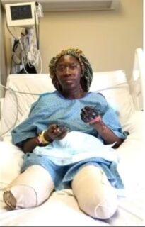 【アメリカ】医療従事者の女性、ファイザー製コロナワクチンを2回接種後、両手両足が壊死して切断