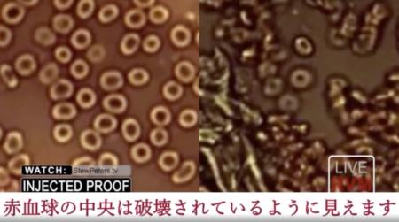 【画像・動画あり】医師らの研究により、コロナワクチンが体内の赤血球を破壊する猛毒であることが発覚!!