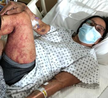 【閲覧注意】猛毒コロナワクチンによる凄惨な副作用の症例